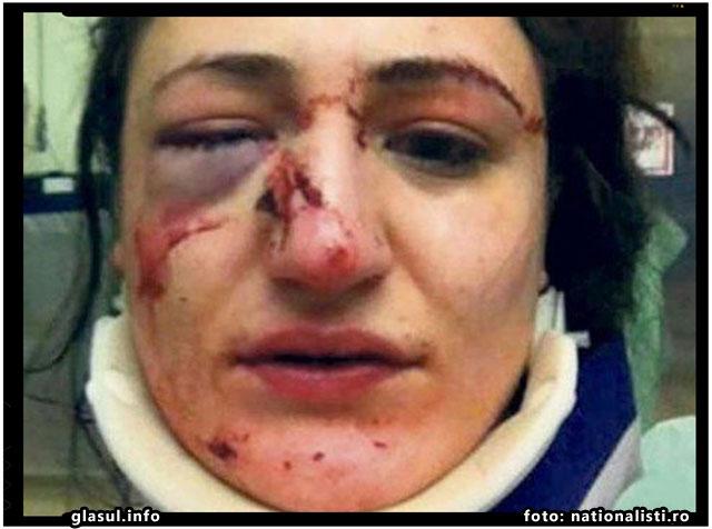 Femeie bătută cu bestialitate în stradă şi lăsată fără bani şi telefon de o gaşcă de TIGANI, foto: nationalisti.ro